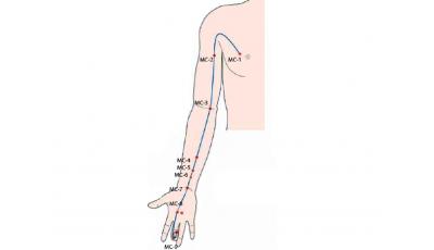 Канал Перикарда, диагностика и методы воздействия