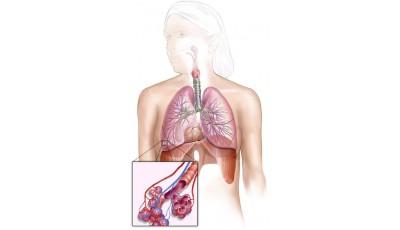 Оценка системы дыхания на АПК ВедаПульс